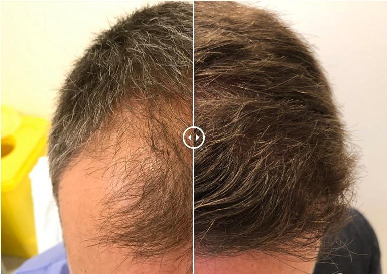 Få tillbaka håret med en lyckad hårtransplantation